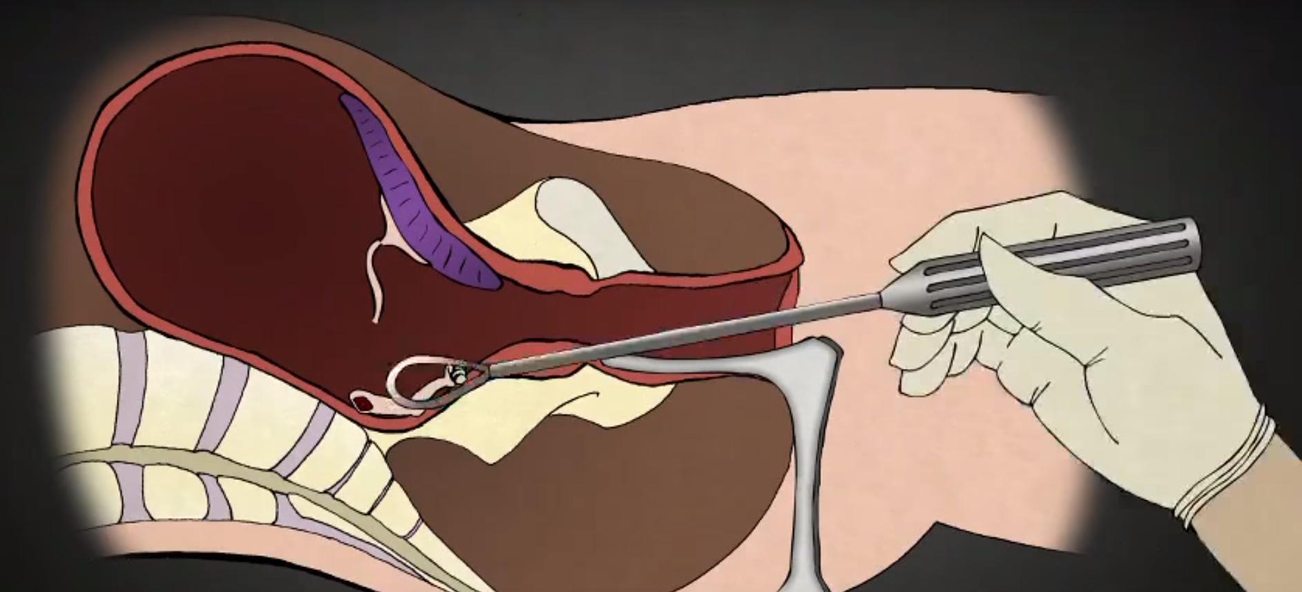 Gynaecoloog kritisch over meest gebruikte abortusmethode: tot 70% hogere kans op vroeggeboorte