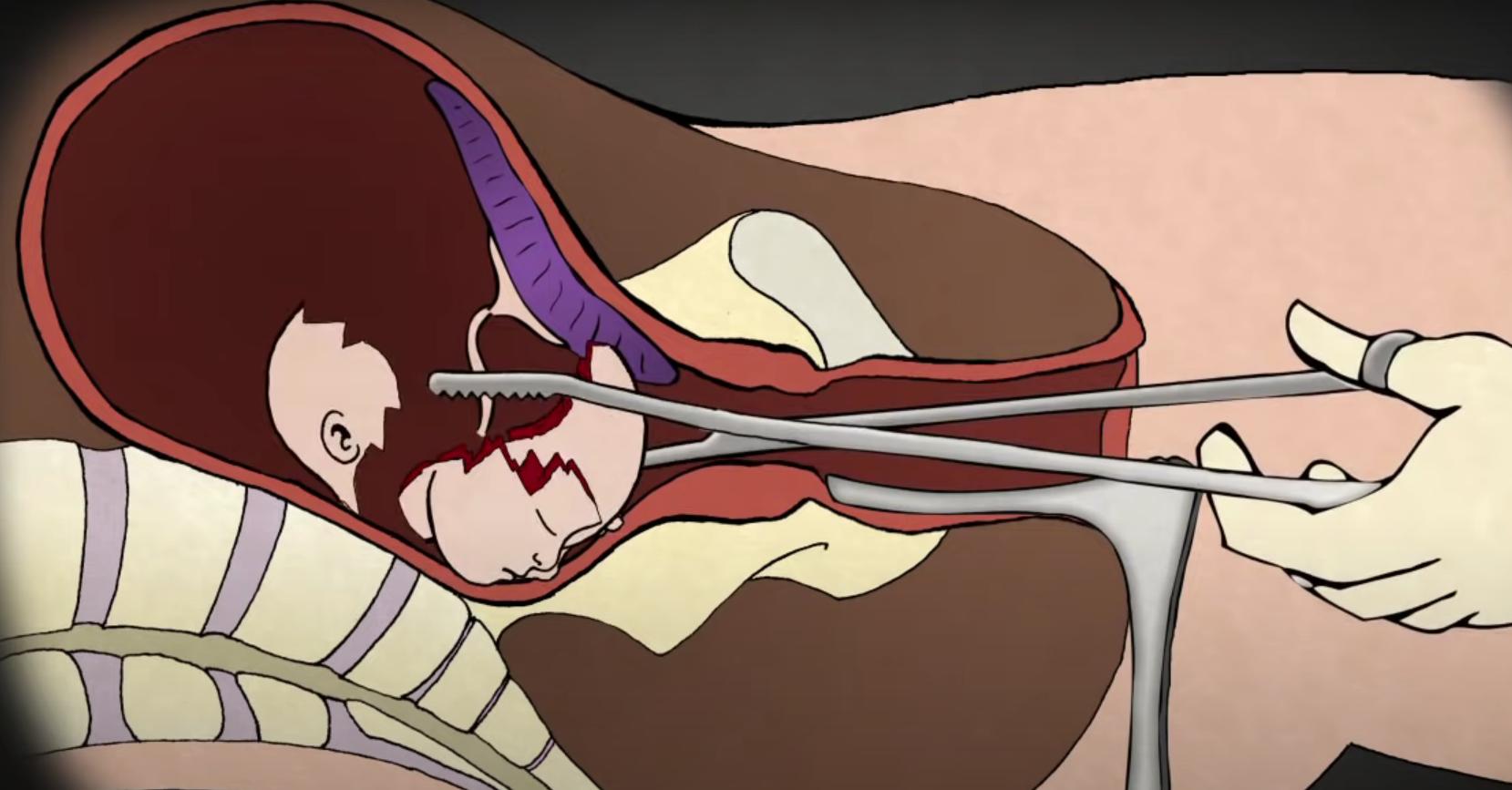 Abortus is een gruwelijke ingreep